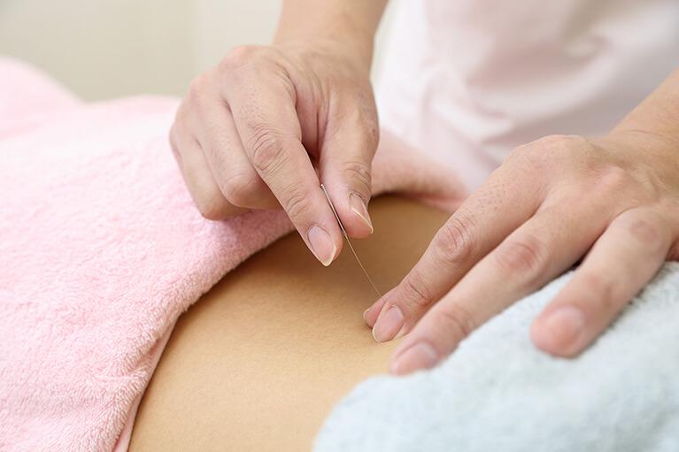 鍼灸法について